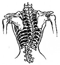 Spinal curvature caused by wearing a corset. Diag. ref. Matura Natura  versus the Moloch of  fashion (1874)