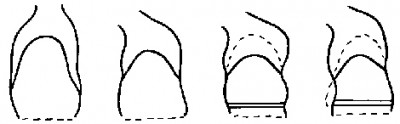 """I'm no artist, but I drew this diagram to explain how leaning forward and wearing tight belts was restricting he expansion of my lungs and causing breathlessness. (from an essay published in The Australasian Nurses Journal in May 1978 p.6, fifteen years before I saw how tight corsets caused the same problem in nineteenth century women."